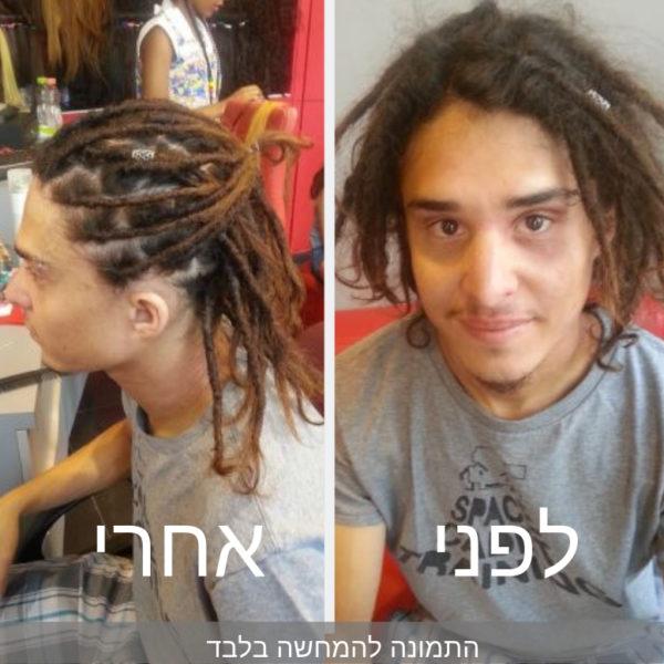 תמונה לפני ואחר תיקון ראסטות